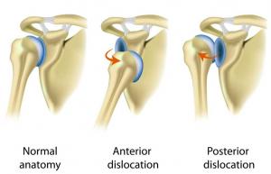unstable shoulder
